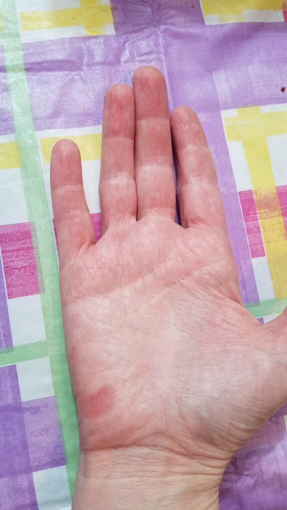My hand much better after burn-- it never blistered