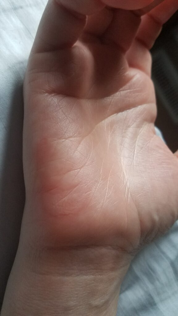 The next morning after burning my hand on an iron skillet