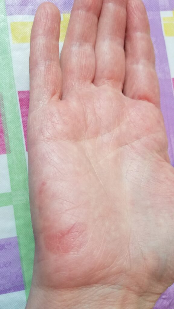 the 4th day after my hand was badly burned