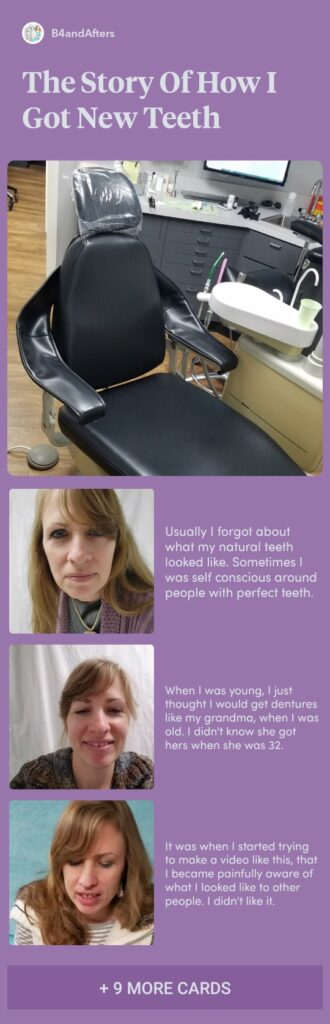 a collage of pictures in a story about getting new teeth